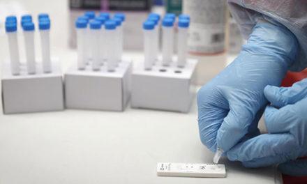 Esta semana se realizarán test de antígenos en las Zonas básicas de Salud de Alpedrete, Majadahonda y Collado Villalba estación